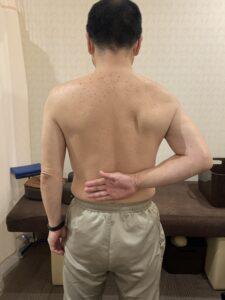 きのき接骨院 筋膜リリース前