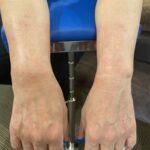 きのき接骨院 手根管症候群